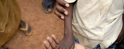A thin refugee child's hand lies in the palm of an adults hand - Somalia refugee camp